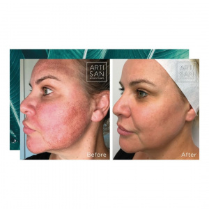 Before and After - Pigmentation Fraxel