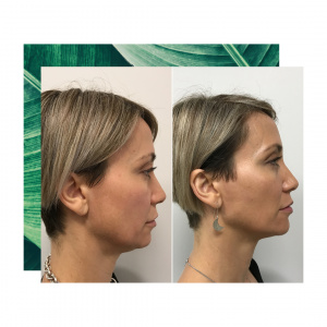 Before & after - Dermal