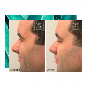 Before & after - Anti wrinkle
