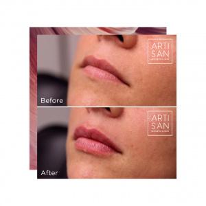 Before & after - Lip filler