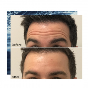 Before & after - Antiwrinkle