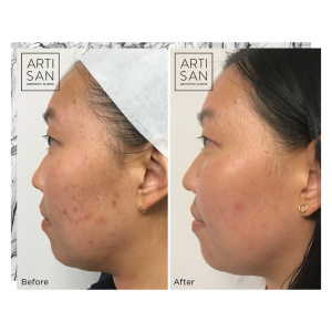 Before and After - Clear + Brilliant